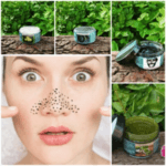 Anti-Blackhead, Whitehead Kit For Oily and Combination Skin