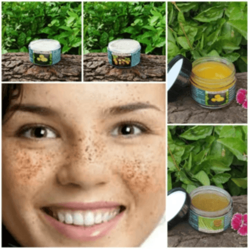 For Pigmentation and Uneven skin tonefor Oily or Combination skin