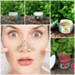 Anti-Blackhead, Whitehead Kit For Dry skin